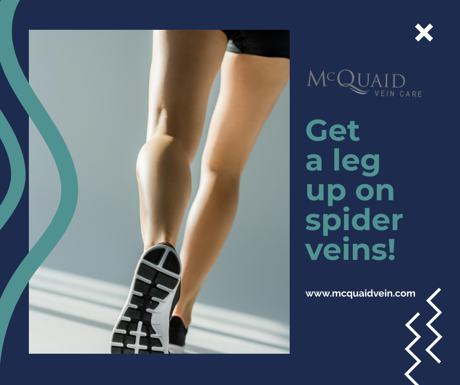 6 Health Tips for Reducing Spider Veins